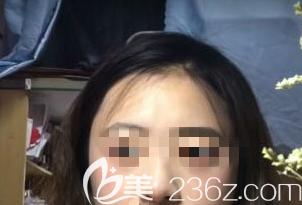 在潍坊做激光祛斑术后40天的样子