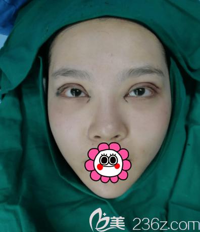 梁伟中医生给我做开眼角+上睑提肌+全切双眼皮手术即刻照