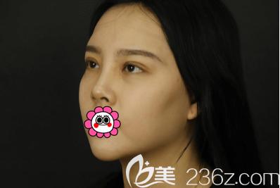 我在北京煤炭总医院做开眼角+上睑提肌+全切双眼皮第29天效果
