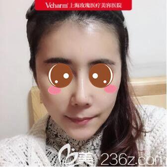 上海玫瑰医疗美容医院王晨光耳骨垫鼻尖+面部脂肪填充真人案例术后15天