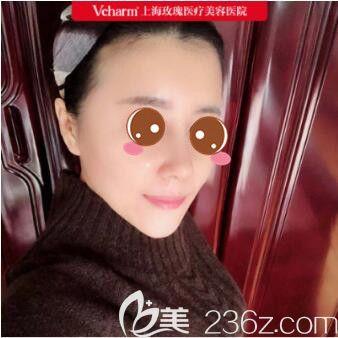 上海垫鼻尖多钱?趁着价格大优惠我在上海玫瑰找王晨光做了耳骨垫鼻尖+面部脂肪填充