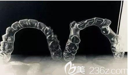 我矫正前的牙套和矫正后的牙套对比