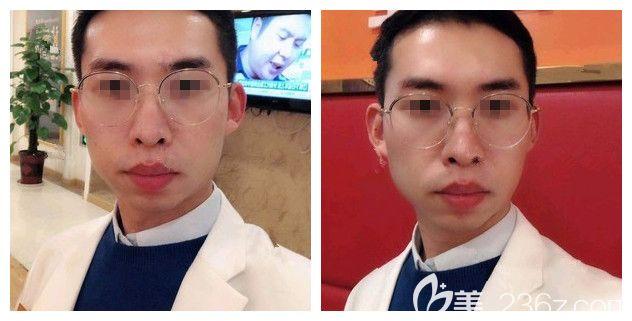 1米8的大老爷们体验南京亚韩光子嫩肤的升级版辉煌360 术后脸上的痘痘暗沉没有脸变的干净不少
