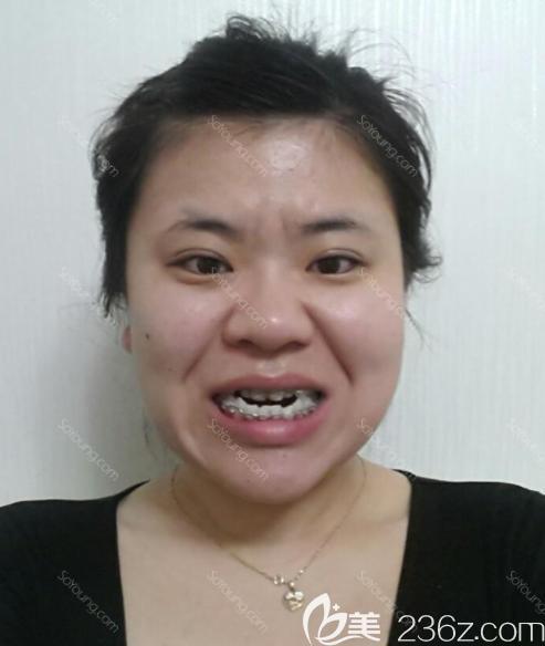 韩国JAYJUN整形外科朴炯埈术前照片1