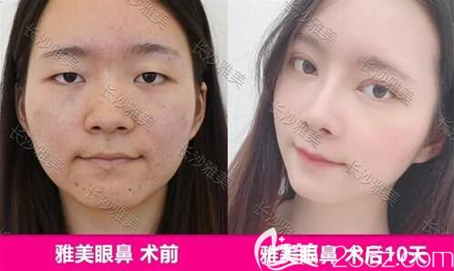 雅美眼鼻整形真人前后效果对比图