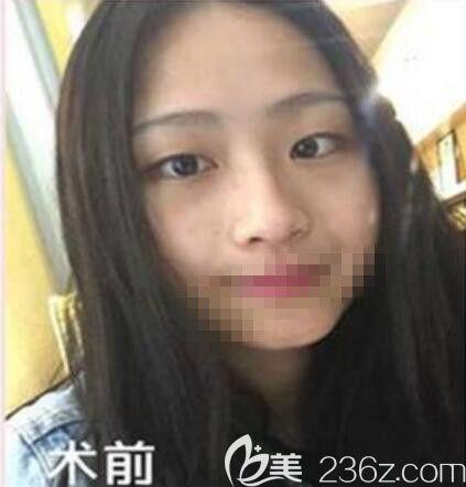 眼皮松弛的我去郑州羽中整形做了全切双眼皮 事后妈妈说我没救了