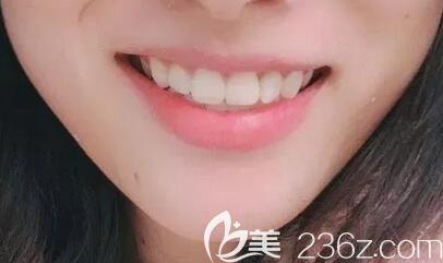 门牙有缝+深覆颌,在深圳牙科排前十名的弘和口腔做金属托槽牙齿矫正1年多下牙套啦