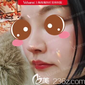 亲身经历上海玫瑰赵延峰做的膨体隆鼻+耳软骨垫鼻尖+鼻基底松解效果确实不错