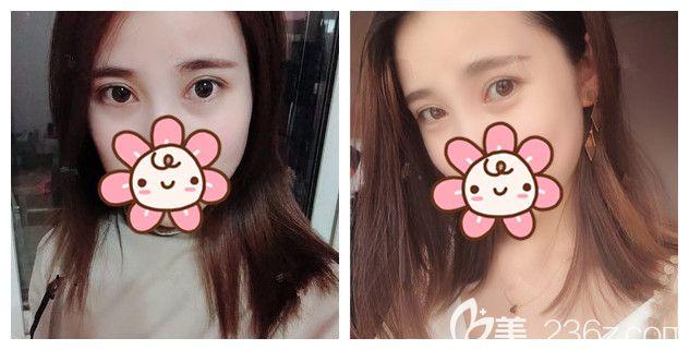 南京榜单前十中的美莱整形能做眼综合不?小仙女已公开做韩式切开双眼皮+开内眼角+上睑下垂矫正的恢复日记