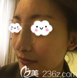 做进口硅胶假体+耳软骨垫鼻尖鼻综合术后照片