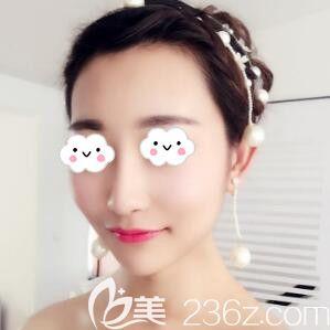 沈阳伊美尔医疗美容医院韩忠辉术后照片1