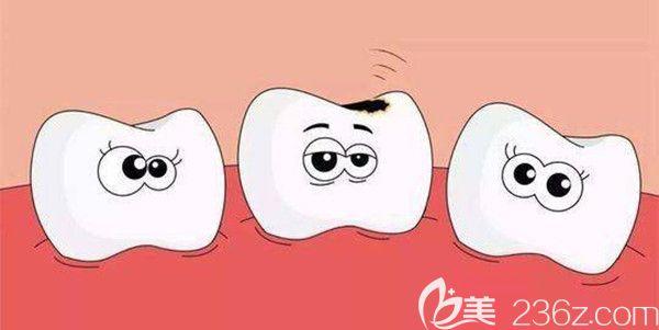 牙髓炎症的主要症状