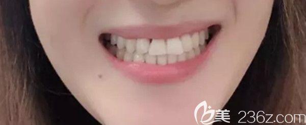 奔四的年龄选择在长春超龙牙博士口腔做隐形矫正,历时425天后牙齐了…