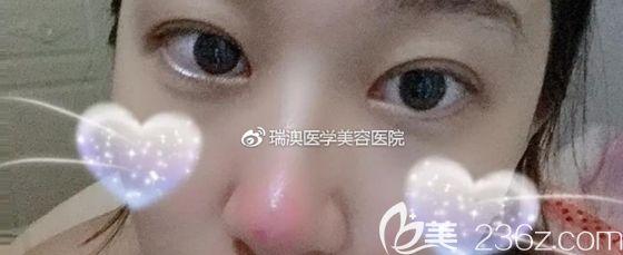 长春谁修复双眼皮好呢?瑞澳整形张建亮做双眼皮失败修复案例展示