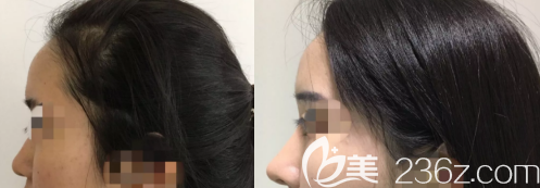 我的假体隆鼻术前后的对比照片
