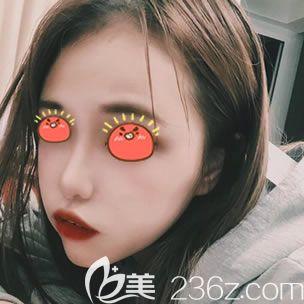 找杭州群英汪峰做完自体脂肪丰额头和面颊,让我做回了曾经那个元气美少女