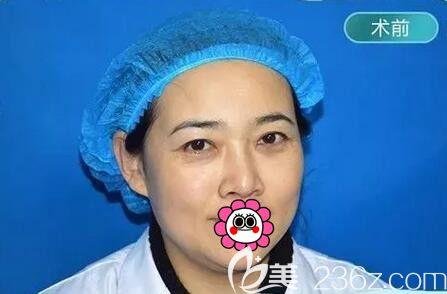 齐齐哈尔君悦医疗美容于腾阳术前照片1