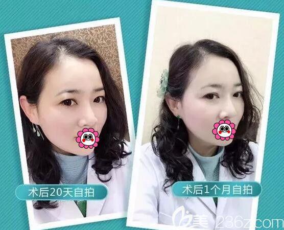 齐齐哈尔君悦医疗美容于腾阳术后照片1