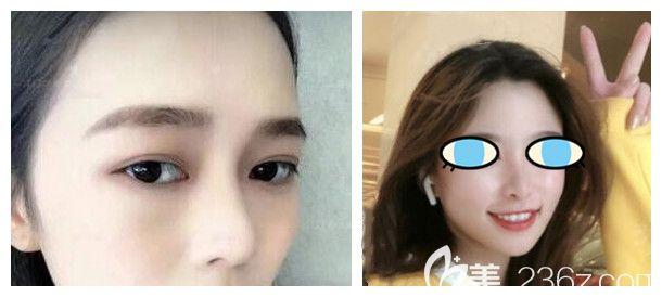 花1万多在太原时光整形做了膨体+自体耳软骨鼻综合隆鼻,术后1个月恢复效果是这样的.....
