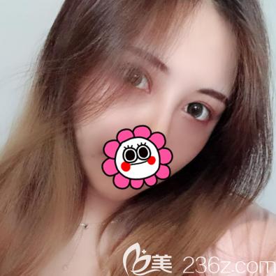 我在北京壹加壹做埋线双眼皮第15天效果