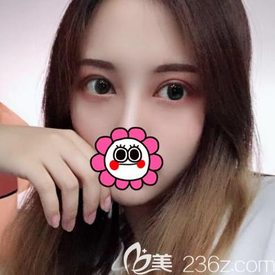 北京壹加壹医疗美容门诊部张绿峰术后照片1
