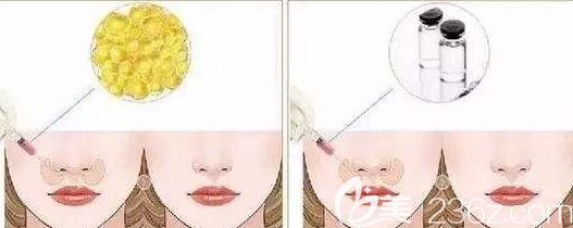 脂肪垫鼻基底和玻尿酸垫鼻基底的示意图