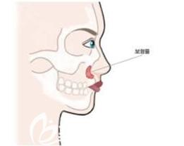 假体垫鼻基底的示意图