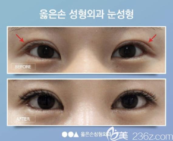 韩国righthand双眼皮案例