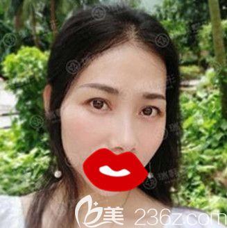不开刀祛眼袋效果怎样?说说我在海南瑞韩医学美容医院做光剥离不开刀祛眼袋的效果及个人感受!