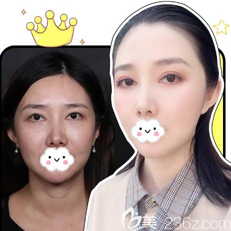 深圳非凡王天成做的双眼皮失败修复案例