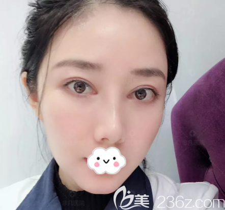 深圳双眼皮修复哪个医生好?公开我去深圳非凡找王天成做双眼皮修复的亲身经历