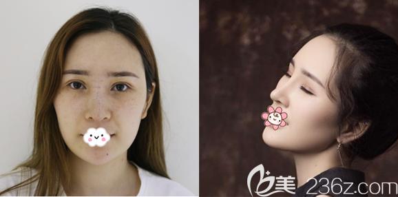 广州紫馨李石峰做的隆鼻子案例
