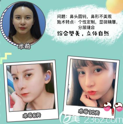 广州紫馨姬付康隆鼻子案例