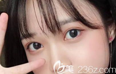 2个月前找杭州薇琳整形医院路则章做了双眼皮,这是一次愉快+轻松+满意的经历