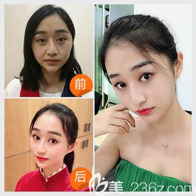 深圳联合丽格陈银东医生线雕提升案例