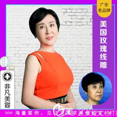 深圳非凡滕传远做的美国玫瑰线雕提升案例