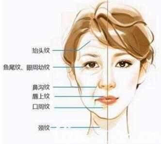 皮肤胶原蛋白流失导致面部出现各种细纹衰老现象