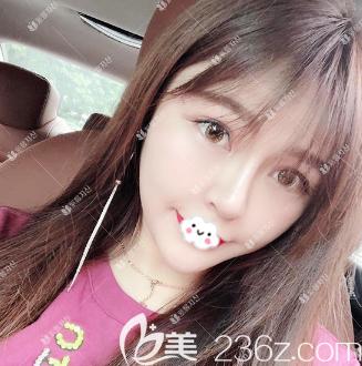 记录一下我去广州紫馨找于晓强做面部线雕埋线提升1-7天恢复过程图片和感受