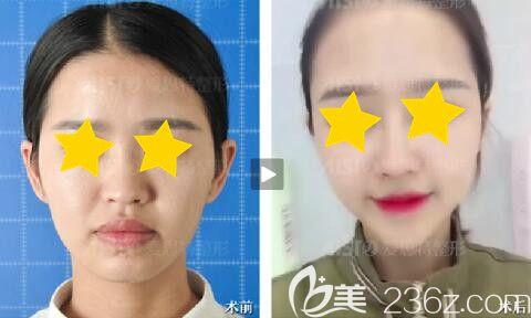 岳阳爱思特鼻整形真人前后对比效果图
