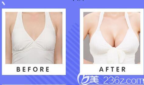 我为什么要给郑州天后的自体脂肪填充满分好评,就凭从业24年的王永功博士和他的特色技术就可以