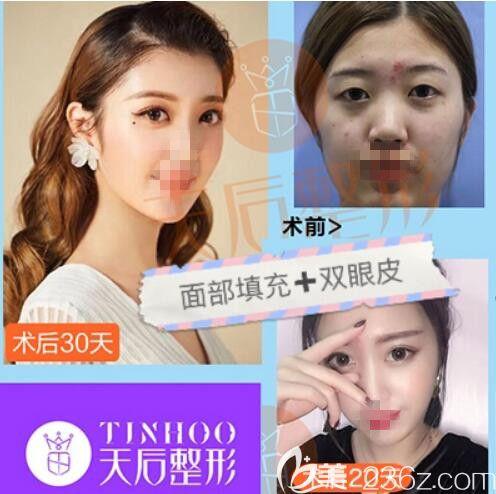 面部填充+双眼皮手术