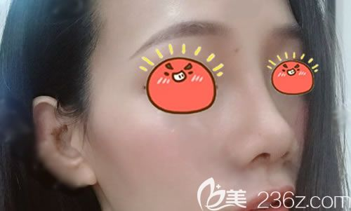 找杭州薇琳曹芳做过自体耳软骨鼻综合隆鼻手术的我用亲身经历告诉你,鼻子这样做才好看