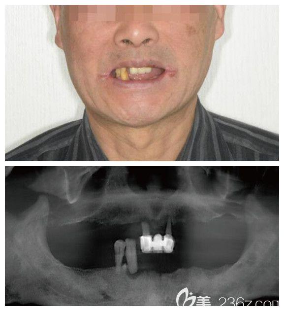 苏州牙博士口腔门诊部术前照片1