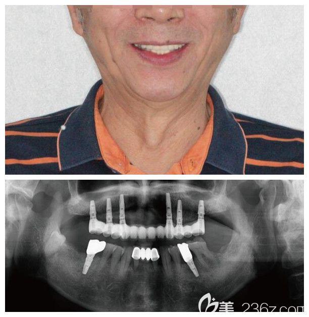 半口牙即刻负重种植案例效果