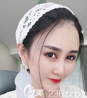 青岛艾菲医疗美容门诊部刘翔术后照片1