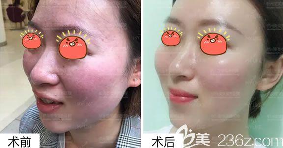 杭州美莱王艳敏感肌修复案例