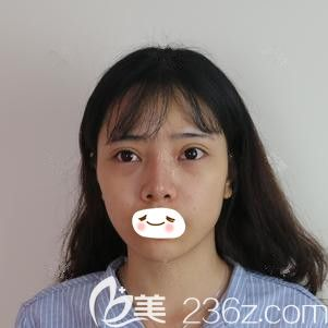 邯郸雅丽医疗美容门诊部陈志朋术前照片1