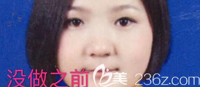 青岛艾菲医疗美容门诊部刘翔术前照片1