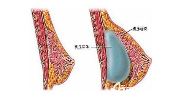 假体隆胸30年后假体可能破裂吗