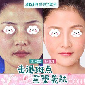 武汉爱思特激光祛斑术后脸部光滑白皙